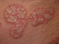 What does psoriasis look like?